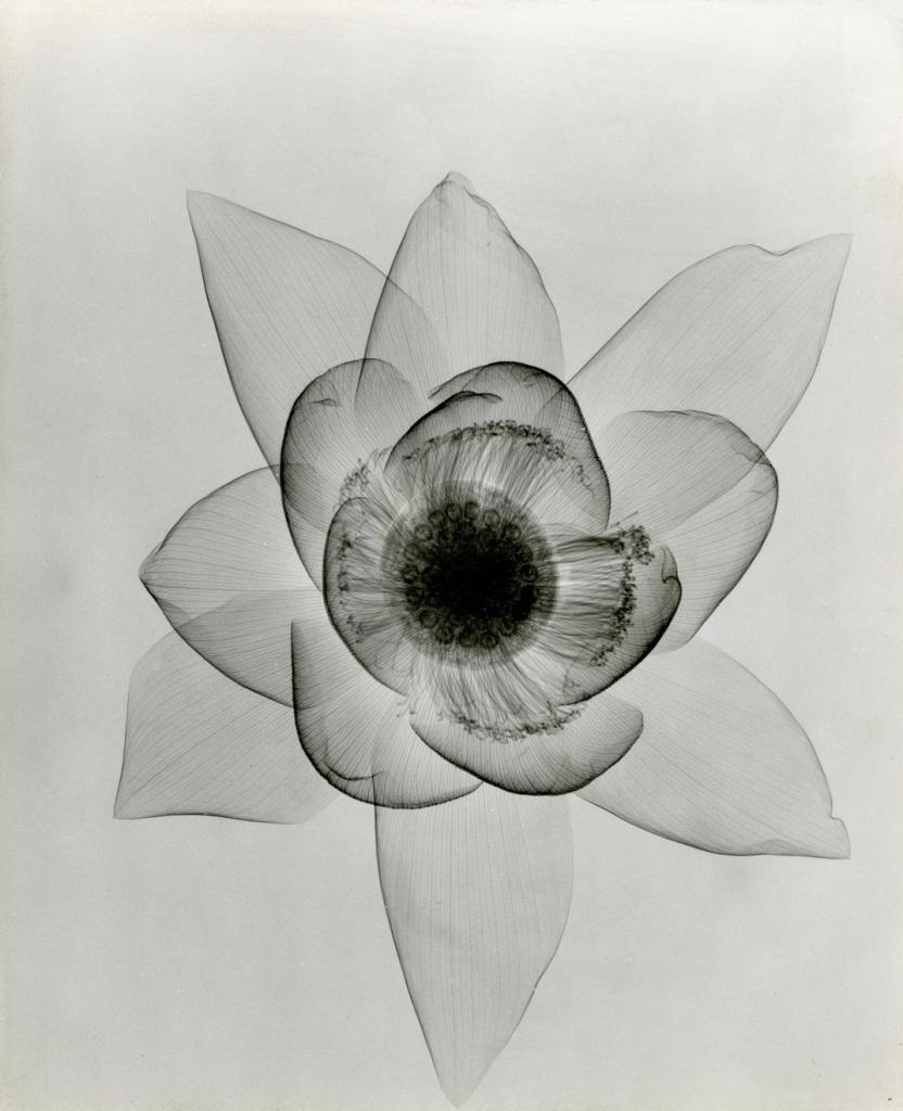 dr_dain_l_tasker_lotus_an_x-ray_c_1930s.jpg__1072x0_q85_upscale
