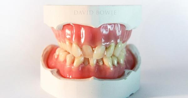 Artist makes a sculpture of David Bowie's original teeth - Aleph